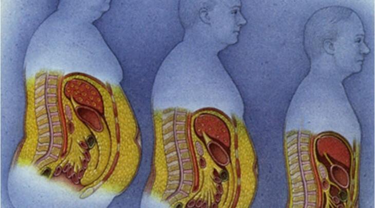 скопление жира в области живота у мужчин