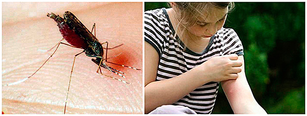 ukusy_komarov_udetei2