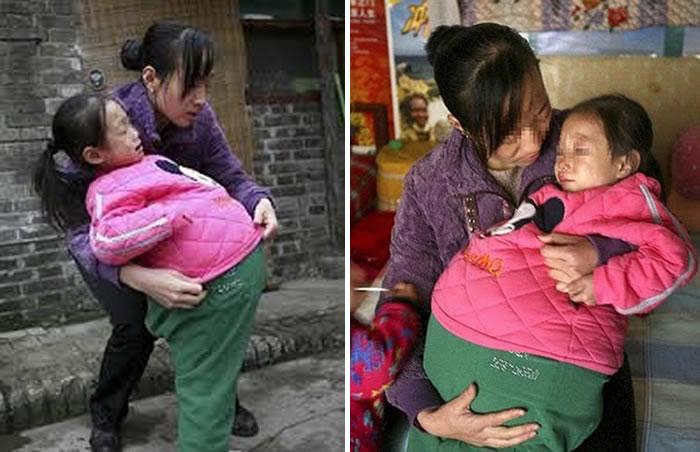 Беременный живот девочки из лаоса 92