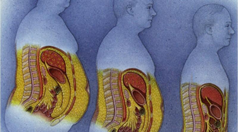 скопление жира области живота