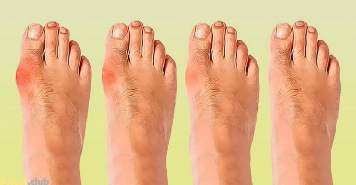 От чего появляется косточка на ноге