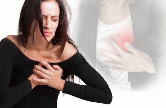 Инфаркт: большинство женщин не знает его симптомы! – В РИТМІ ЖИТТЯ