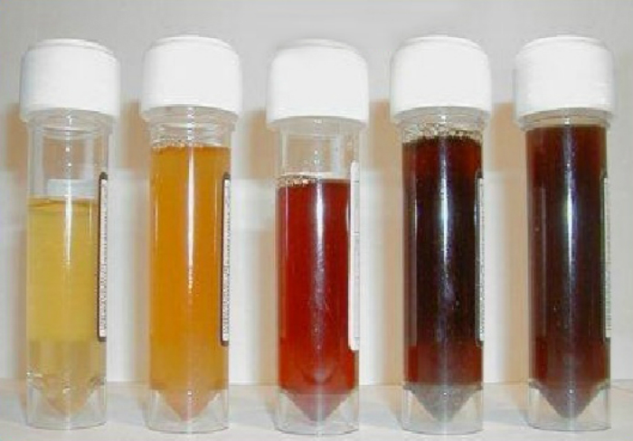 dark orange urine analysis - 700×488