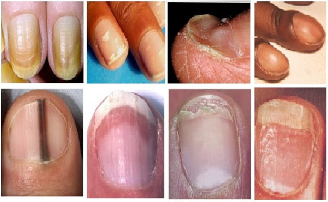 Как правильно обрезать ногти пораженные грибком