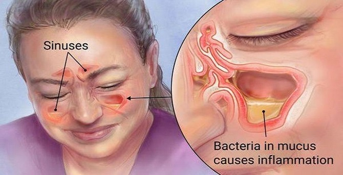 периодический запах изо рта
