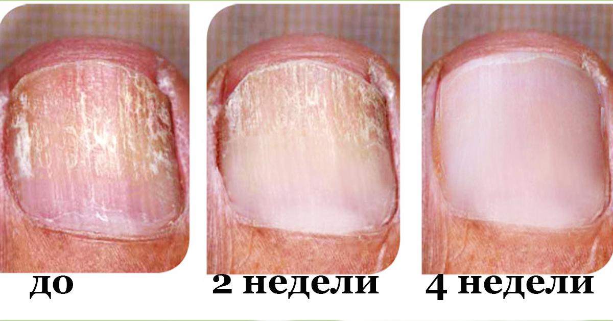 Нити мицелия грибок ногтя чем лечить