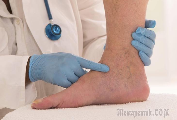 Лучшие методы лечения варикозного расширения вен на ногах – В ...