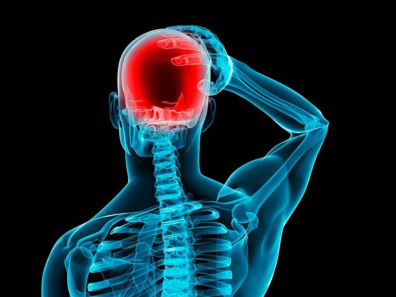 Внутричерепная гипертензия если болит голова