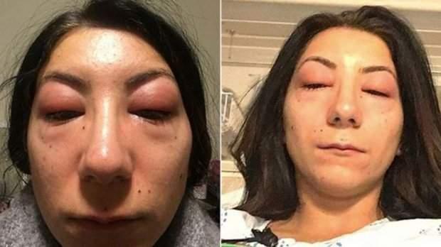аллергия на клей для наращивания