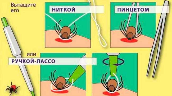 ВНИМАНИЕ!!! Укусы насекомых: 12 видов и что делать при каждом из них, фото-2